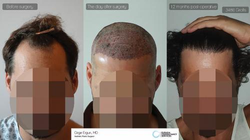 Hair_Transplant_OE_29