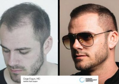 Hair_Transplant_OE_29_1