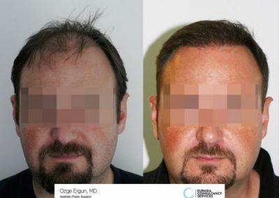 Hair_Transplant_OE_2_1_1_