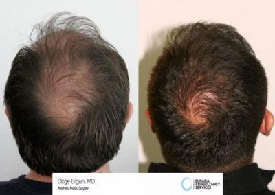 Hair_Transplant_OE_2_5_1