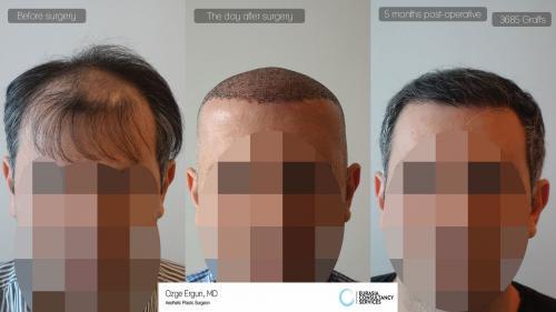 Hair_Transplant_OE_30_1