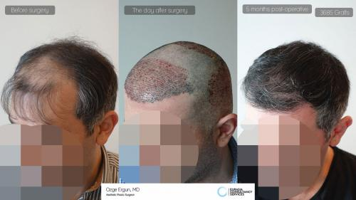 Hair_Transplant_OE_30_3