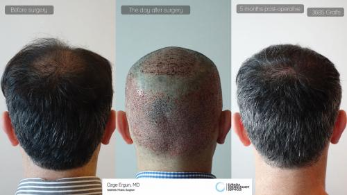 Hair_Transplant_OE_30_5