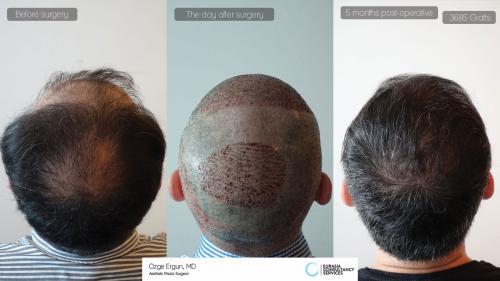 Hair_Transplant_OE_30_6