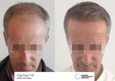 Hair_Transplant_OE_3_2