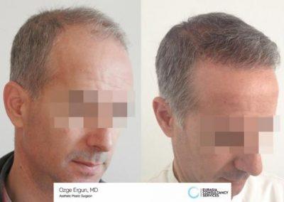Hair_Transplant_OE_3_3