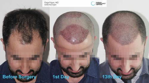 Hair_Transplant_OE_7_2