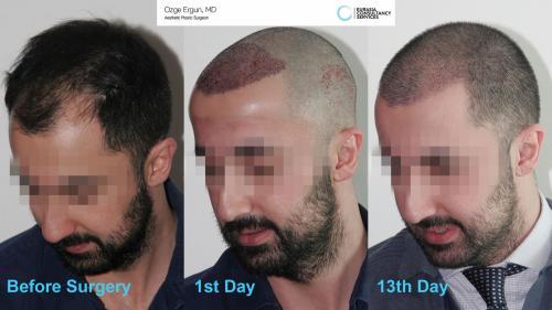 Hair_Transplant_OE_7_4