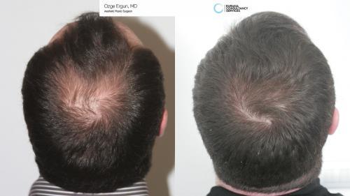 Hair_Transplant_OE_8_5