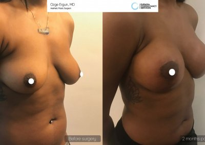 be_af_aai_breast_augmentation