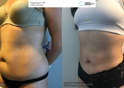 be_af_ayl_liposuction1