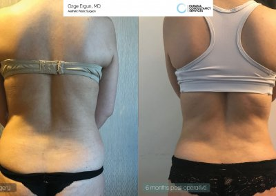 be_af_ayl_liposuction3