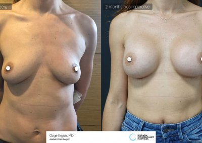 be_af_csh_breast_augmentation_1