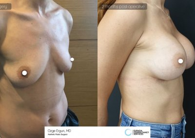 be_af_csh_breast_augmentation_2