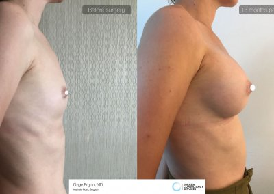 be_af_eos_breastaug4