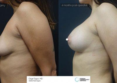 be_af_gnm_breastaug_5