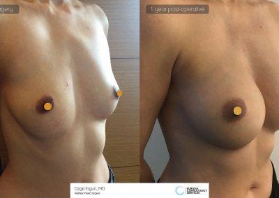be_af_nas_breast_1