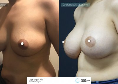 be_af_nfr_Breast_Augmentation