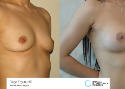 breast_implant_2