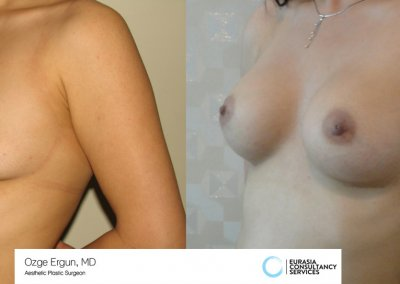 breast_implant_3