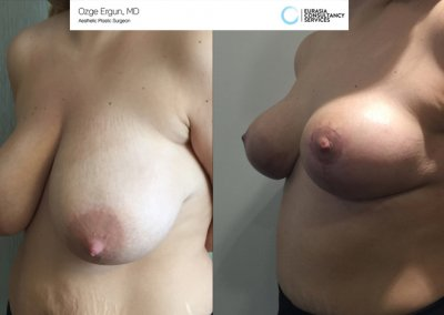breast_lift1