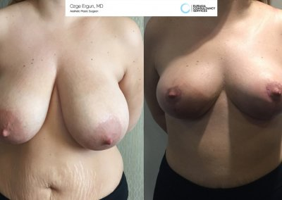 breast_lift3