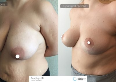 breast_lift5